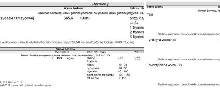 Hashimoto diagnoza
