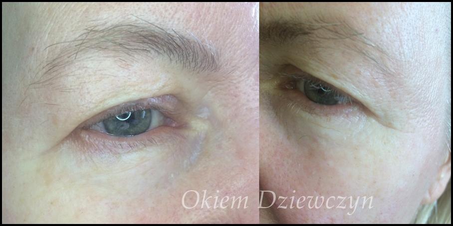 Efekt na oku po skoncentrowanym serum pod oczy Sotalie Laboratory.