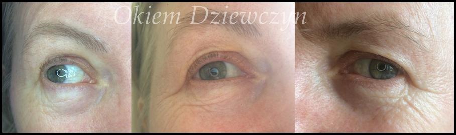 Efekt na oku przed skoncentrowanym serum pod oczy Sotalie Laboratory.